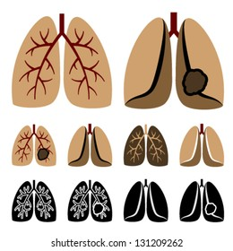 Vector human lung cancer icons