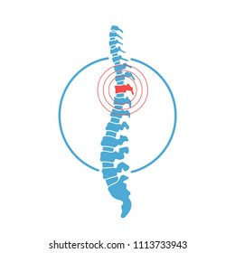 Vector human spine with pain isolated silhouette illustration. Spine pain medical center, clinic, rehabilitation, diagnostic, surgery logo element. Spinal icon symbol design. Concept of scoliosis