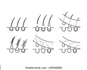 Vector icons set of hair removal methods. Symbols of epilation types in thin line style: epilation, waxing, shugaring. Hair root, bulb and epidermis. Outline simple illustrations isolated on white