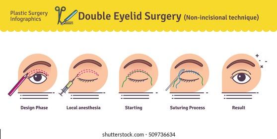 Ilustraciones, imágenes y vectores de stock sobre Eye Lid