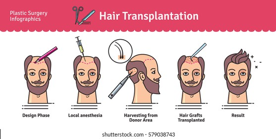 Hair Transplant Images, Stock Photos & Vectors | Shutterstock