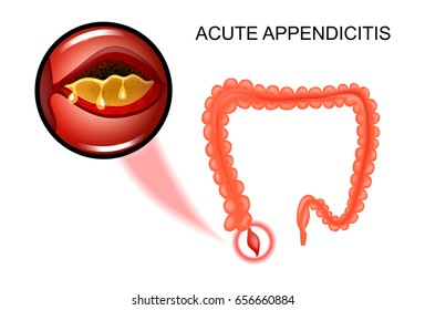 vector illustration of acute appendicitis, the inflammation of the Appendix