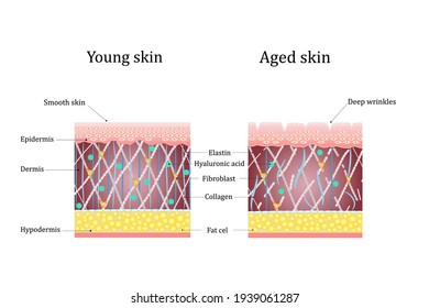 Vector illustration of age-related changes in the skin. Comparison of young and old skin. Structure human skin with collagen and elastin fibers, fibroblasts.