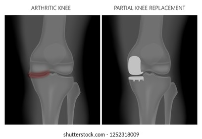 Vector illustration. Anatomy, front x-ray of an arthritic knee joint and a knee after unicompartmental or partial  knee replacement. For advertising and medical publications. EPS 10.