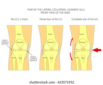 Vector illustration anatomy of a knee joint with healthy ligaments and sprain, tear, rupture of lateral collateral ligament. Front view of straight knee. For advertising, medical publications. EPS 10