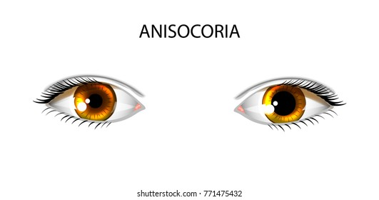 vector illustration of anisocoria. pupils of different sizes