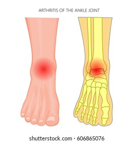 Vector illustration of Arthritis of an ankle joint. Front view of the human foot with pain. EPS 10.