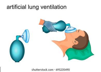 vector illustration of artificial ventilation bag and masks
