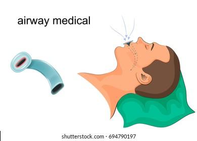 vector illustration of artificial ventilation by airway medical