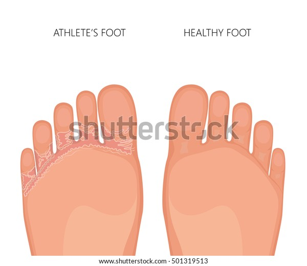 Vector illustration of Athlete's foot or tinea pedis (soles of the feet) with damaged skin between and under the toes.