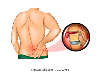 vector illustration of back pain. damage to the spine