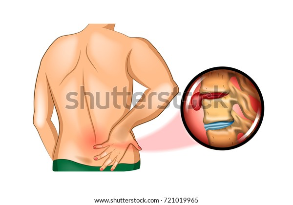 Vector Illustration Back Pain Damage Spine Stock Vector Royalty Free 721019965
