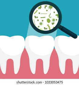 Vector illustration. Bacteria on a human white tooth being viewed on a magnifying glass.