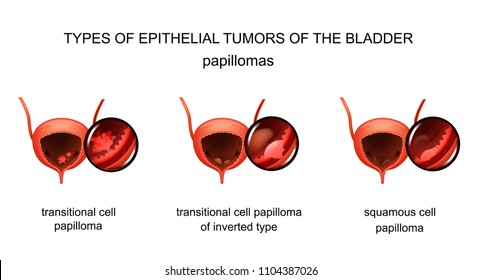 vector illustration of bladder epithelial tumors. urology