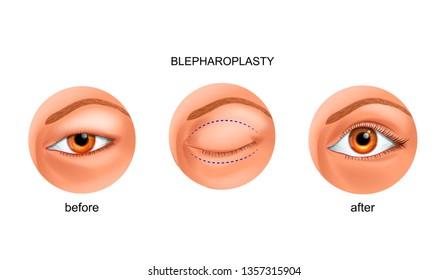 vector illustration of blepharoplasty of the Asian eyelid