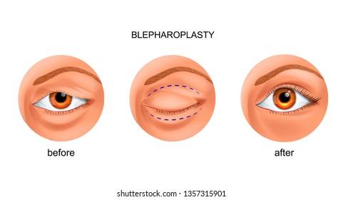 vector illustration of blepharoplasty of the overhanging eyelid