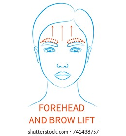 Vector illustration: blue contour hand drawn asian female face plastic surgery icon with inscription Forehead and brow lift isolated on white background