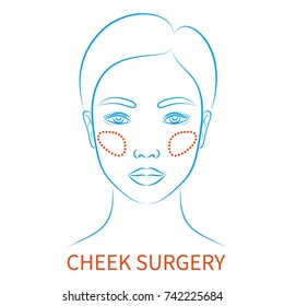 Vector illustration: blue contour hand drawn asian female face plastic surgery icon with inscription Cheek surgery isolated on white background