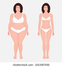 Vector illustration body weight loss in a European woman from obesity to normal. Front view. For advertising of cosmetic plastic procedures, stomach shunting, diet; medical publications. EPS 8.