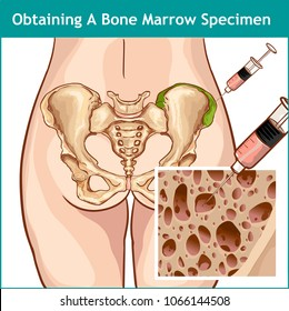 VECTOR ILLUSTRATION OF A BONE MARROW ASPIRATION