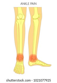 Vector illustration of bones of a human legs (anterior and medial view) with ankle joint pain or injury. For advertising, medical (health care) publications. EPS 10