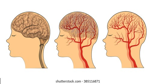 Vector illustration of the brain , the vessels of the brain