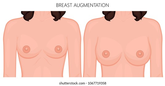 Vector illustration of breast augmentation before and after plastic surgery. Front view of the woman breast. For advertising and medical publications. EPS 10.