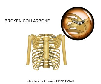 vector illustration of a broken collarbone. osteosynthesis