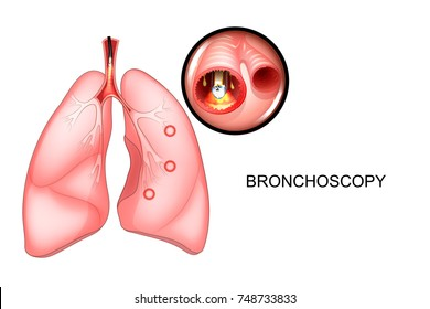 vector illustration of a bronchoscopy of the lungs, sectional view