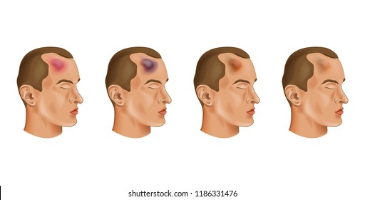 vector illustration of a bruise on a mans head
