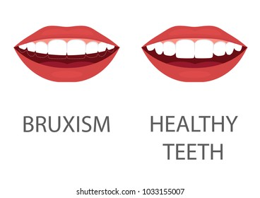 vector illustration of bruxism. grinding of teeth. tooth appliance. dental care. dentistry health problem