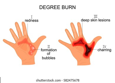 vector illustration of burn the hands of four degrees