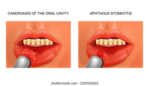 vector illustration of a candidiasis, and aphthous stomatitis