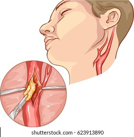 vector illustration of a Carotid Endarterectomy