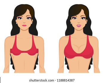 Vector illustration of a cartoon beautiful girl with a small and big breast in a bra. Isolated white background. Breasts before and after.