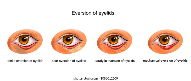 vector illustration of the cause of the eyelid