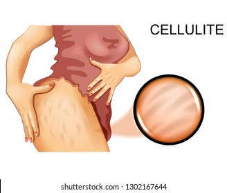 vector illustration of cellulite on a woman's thigh