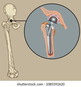 Vector illustration of cementless arthroplasty prosthesis.
