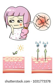 Vector illustration character design a girl with a problem skin. and sectional view of the skin. Comparison illustration between healthy skin and dry skin