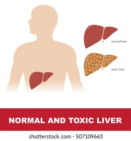 vector illustration of comparison of healthy and toxic liver