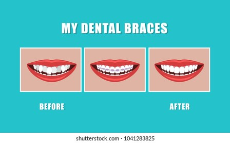 Vector illustration. Concept of the work of dental braces. Beautiful smile.