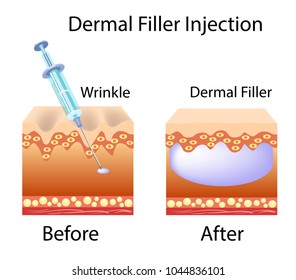 Vector illustration with cosmetic filler or Dermal fillers