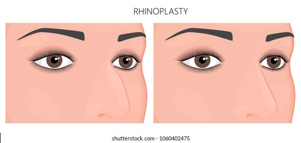 Vector illustration. Crookedness of human nose before, after rhinoplasty (nose job). Close up view. For advertising and medical publications. EPS 10.