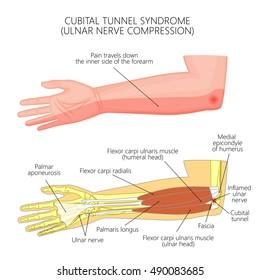 Vector illustration of Cubital tunnel syndrome or ulnar nerve impingement.  Used: Gradient,  transparency, blend mode.