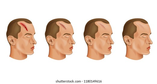vector illustration of a cut head wound