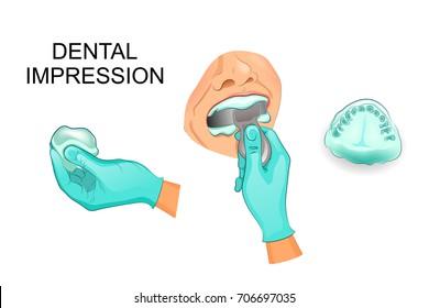 vector illustration of a dental cast of human teeth