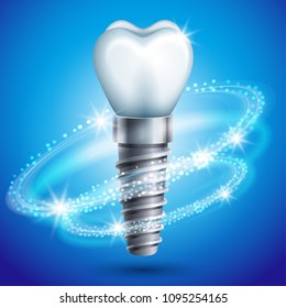 Vector illustration - dental implant icon