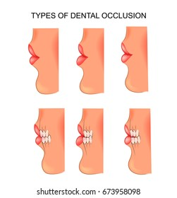 vector illustration of a dental occlusion. dentistry