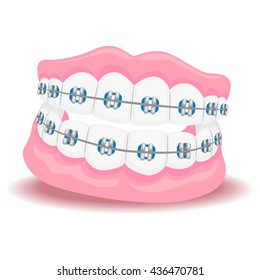 Vector Illustration of Dentures with Braces