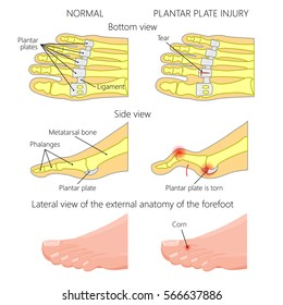 Vector illustration (diagram). Hammer toe. Plantar plate injury. Mechanism of rupture of plantar plate of the second toe of the foot. External and skeletal views of an ankle.